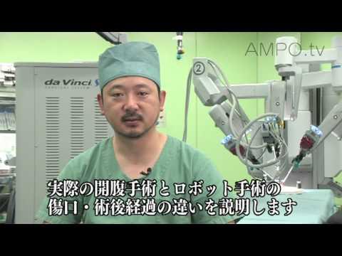 東京腎泌尿器センター大和病院 <ダヴィンチ>ロボット手術 - YouTube