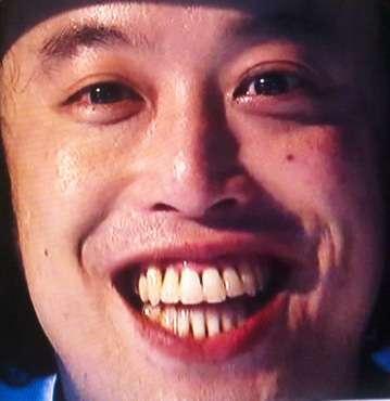 歯並びが悪くても可愛ければOKですか?