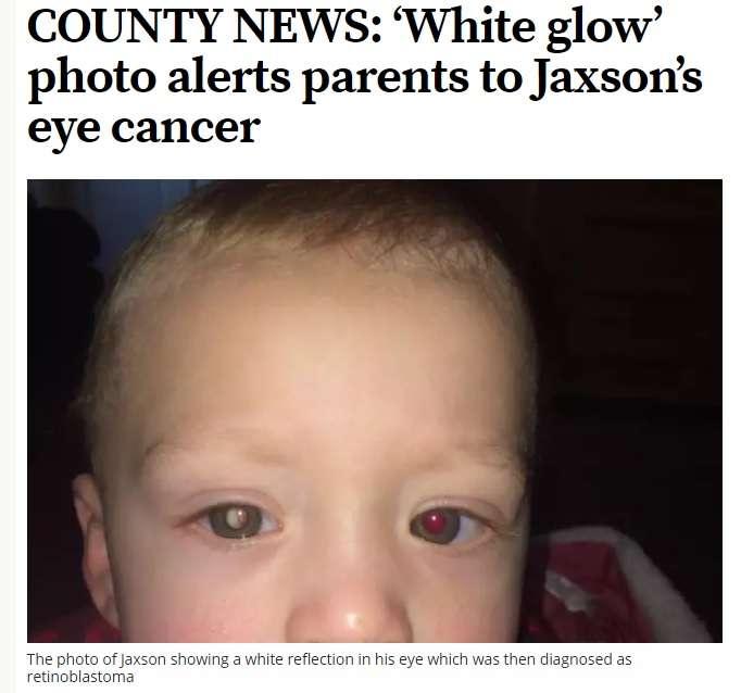 【海外発!Breaking News】写真に写る「白く光る目」を見たら病気を疑って!(英) | Techinsight|海外セレブ、国内エンタメのオンリーワンをお届けするニュースサイト