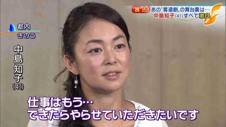 松嶋尚美がオセロ復活に本音…生放送で元相方・中島知子に呼びかけ