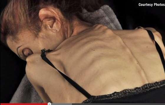 【摂食障害】身長170cm体重18キロ ― 米国人女優を「死のダイエット」に駆り立てたものとは? - エキサイトニュース
