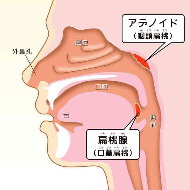アデノイド顔貌、ゴボ口、口ゴボ総まとめ!!これさえ読めばすべて分かる - 歯科医師監修のキュレーションサイト