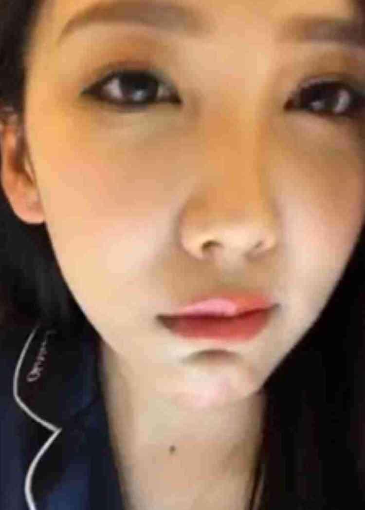 整形した顔の特徴
