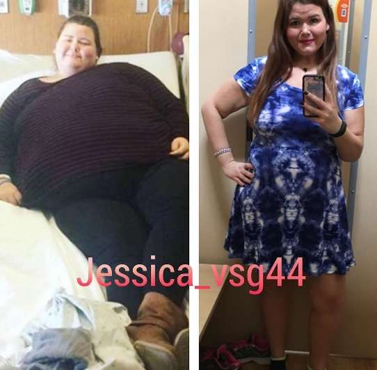 80キロ超の減量に成功した女性「でもこれが現実」と衝撃の姿を公開(米)