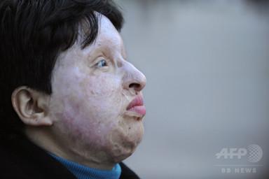 イラン、「目には目を」で男に失明刑執行 4歳児の視力奪った罪で 写真3枚 国際ニュース:AFPBB News