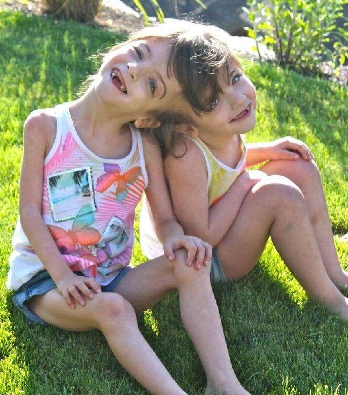 16歳の結合双生児、分離手術望まず「私たちは今のままがいい」(米)
