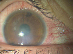 ある奈良県の眼科医が目について書いたブログ : どのカラコンが危険? どのカラコンが安全? 国民生活センターの発表から危険なカラーコンタクト(カラコン)の調査