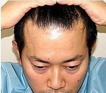 髪の毛の少ない芸能人 107 [無断転載禁止]©2ch.netYouTube動画>3本 ->画像>477枚