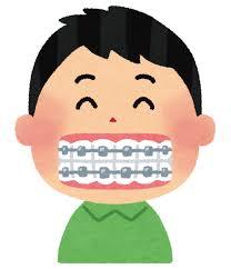 子供の歯科矯正、させる?させない?