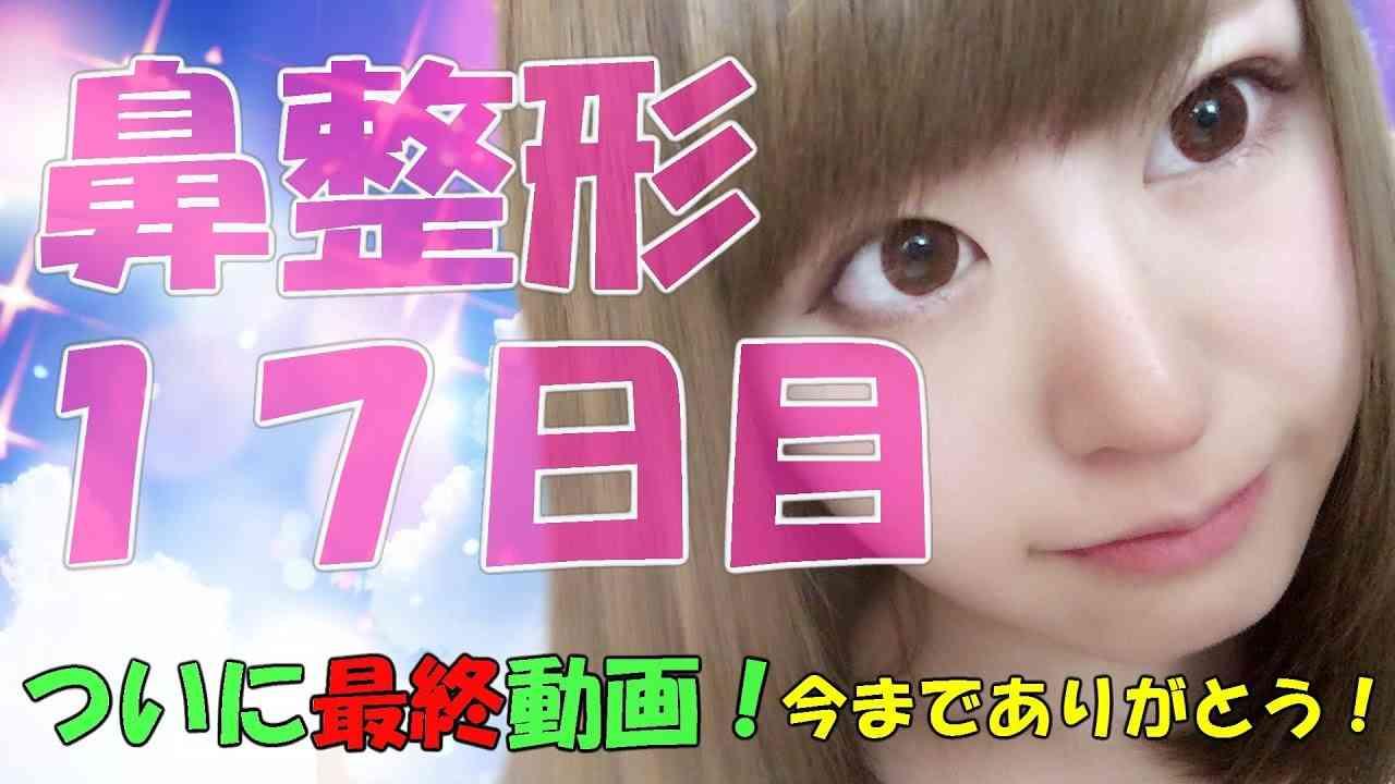 鼻整形17日目☆メンヘラ整形アイドル轟ちゃん!【最終回】 - YouTube