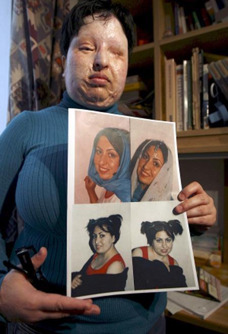 硫酸で顔を失った女性、犯人は「目に硫酸20滴」の刑に : テストサイト