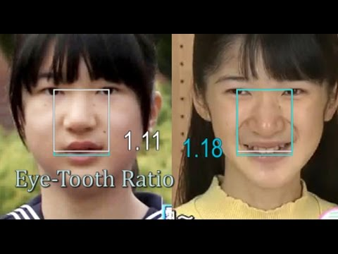 愛子様と替え玉: 目歯比率が照らし出す複数の児童虐待? - YouTube