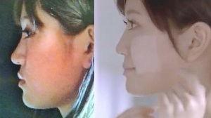 鼻の美容整形をした人・したい人