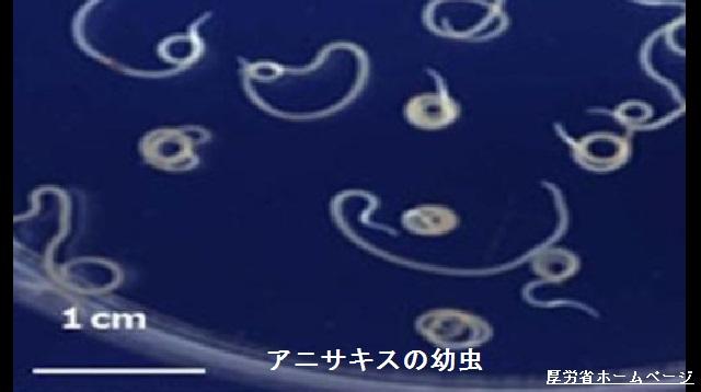 寄生虫アニサキス 食中毒が増加傾向 対策徹底を | NHKニュース