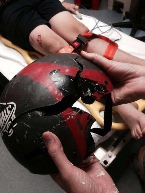 ヘルメットすげぇ!ヘルメットを被っていなかったらと思うとゾっとする画像