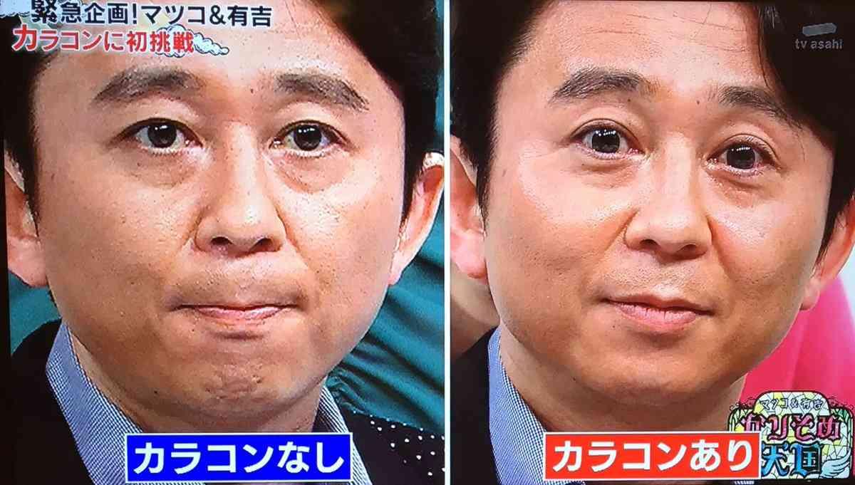 """久保田直子アナ""""カラコン論争""""で無色レンズ購入「""""Xデー""""来るかもと思って」"""