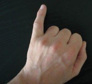 【深刻な病気!?】小指に痺れを感じたら - NAVER まとめ