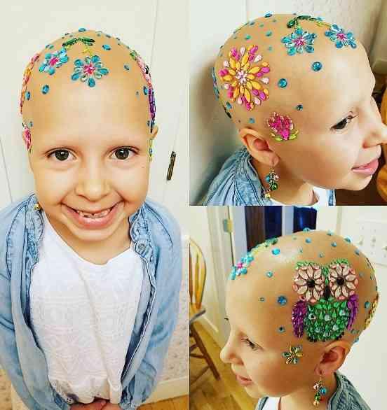 『奇抜な髪型デー』で絶賛された脱毛症の少女 髪がなくてもこんなに素敵