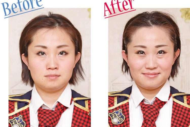 小顔矯正、効果ありますか?