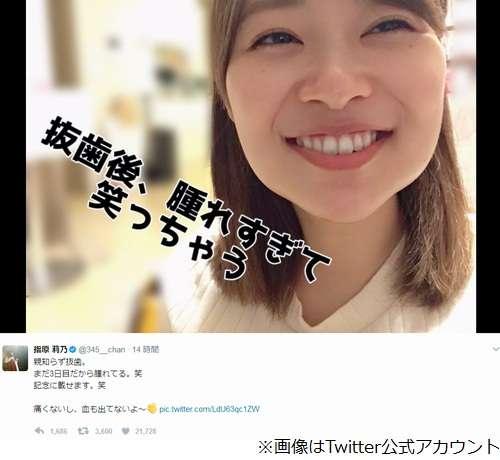 指原莉乃、腫れすぎて顔の形変わる | Narinari.com