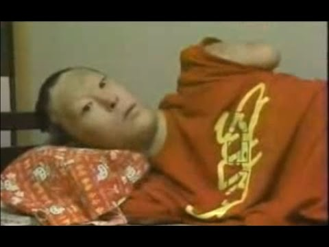 【シンナー事故】両手両足を失った少年の過酷な人生・衝撃 - YouTube
