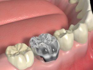 銀歯を入れるのは日本人だけか リスクをよく理解する必要も