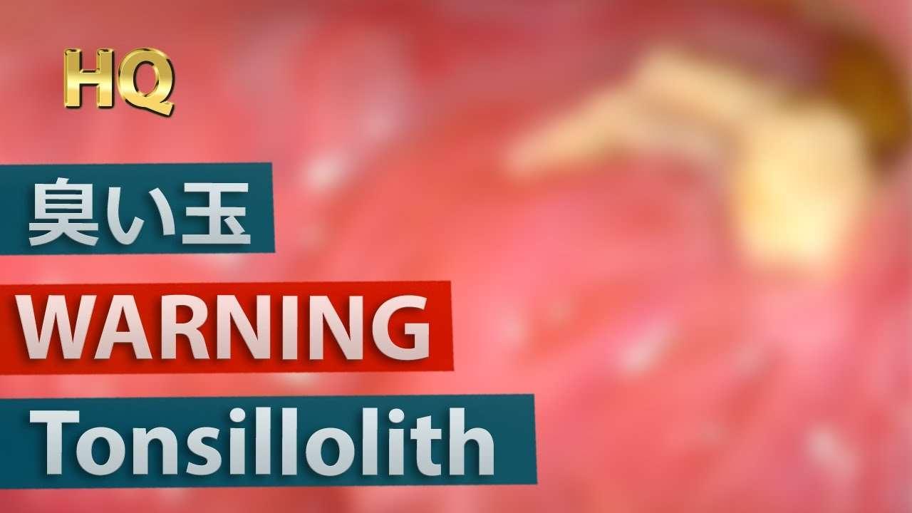 [閲覧注意] 巨大膿栓(臭い玉)を除去 - YouTube
