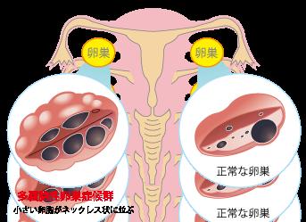 多嚢胞性卵巣症候群(PCOS)の方いらっしゃいますか?