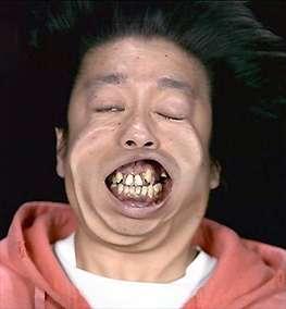 男性の歯科矯正