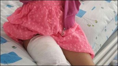 7歳の少女のスマホ(サムスンGALAXY S II)が爆発して皮膚移植手術を要する大けが