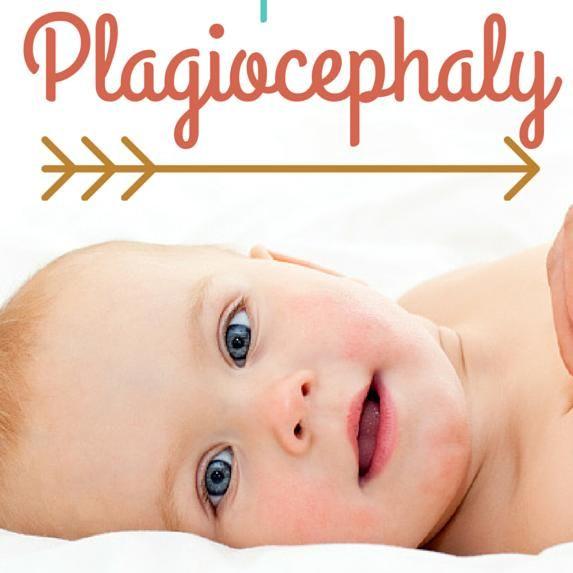 【位置的頭蓋変形症】向き癖などによる赤ちゃんの頭の歪み - NAVER まとめ