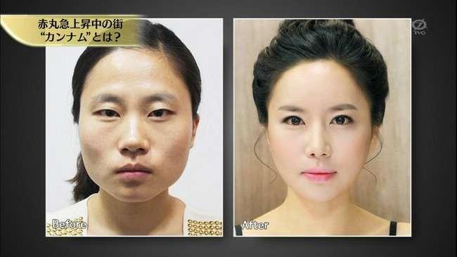 高須クリニック院長「韓国に美容整形を教えたのは日本。みんな同じ顔に見えるのは技術が低いから」 : オレ的ゲーム速報@刃