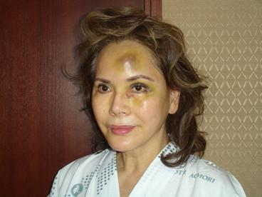 イモトアヤコ デヴィ夫人に「バケモノ!」と言われインプラント治療
