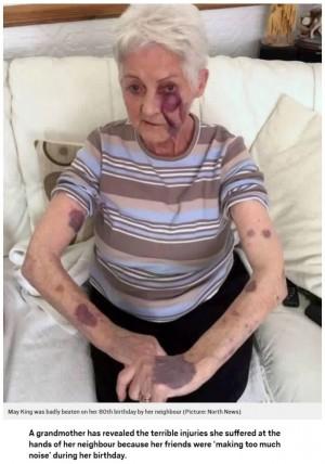 80歳女性の誕生日が悪夢に「うるさい!」と隣人から暴力、病院へ搬送される(英)