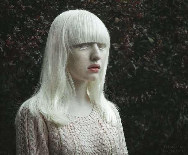 「エルフの女王」と呼ばれるアルビノの女の子・ナスチャが美しい