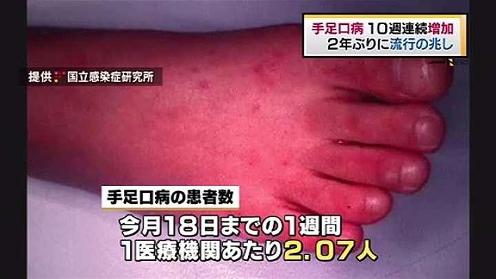 手足口病10週連続増加、2年ぶりに流行の兆し TBS NEWS