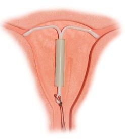 避妊、過多月経緩和?ミレーナはどう?