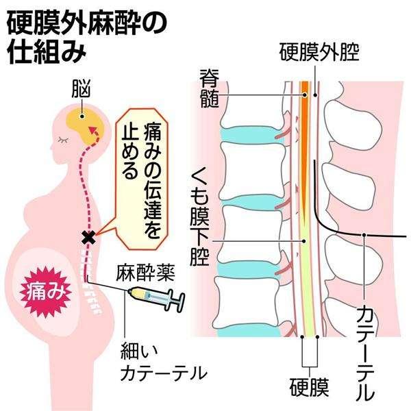 「麻酔ミスで母子とも植物状態」家族、京都の医院を提訴 医院側「適切な措置」