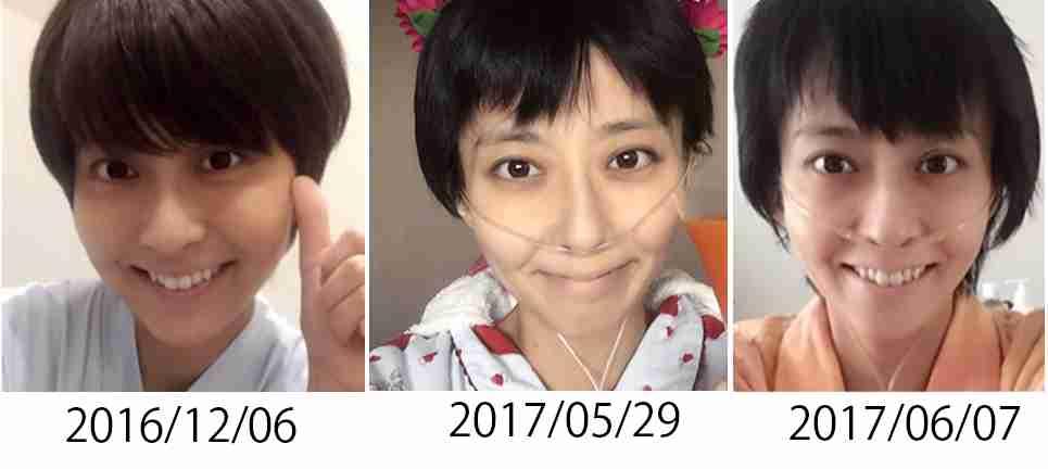 小林麻央 4月の輸血で命つなぐ「あの輸血がなければ妹は今…」小林麻耶が涙で明かす