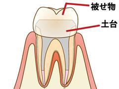 保険の銀歯と自費のセラミックどれがいいの? 後悔しない抜髄後のクラウン選択