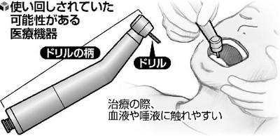 歯削る医療機器、半数使い回し…院内感染の恐れ