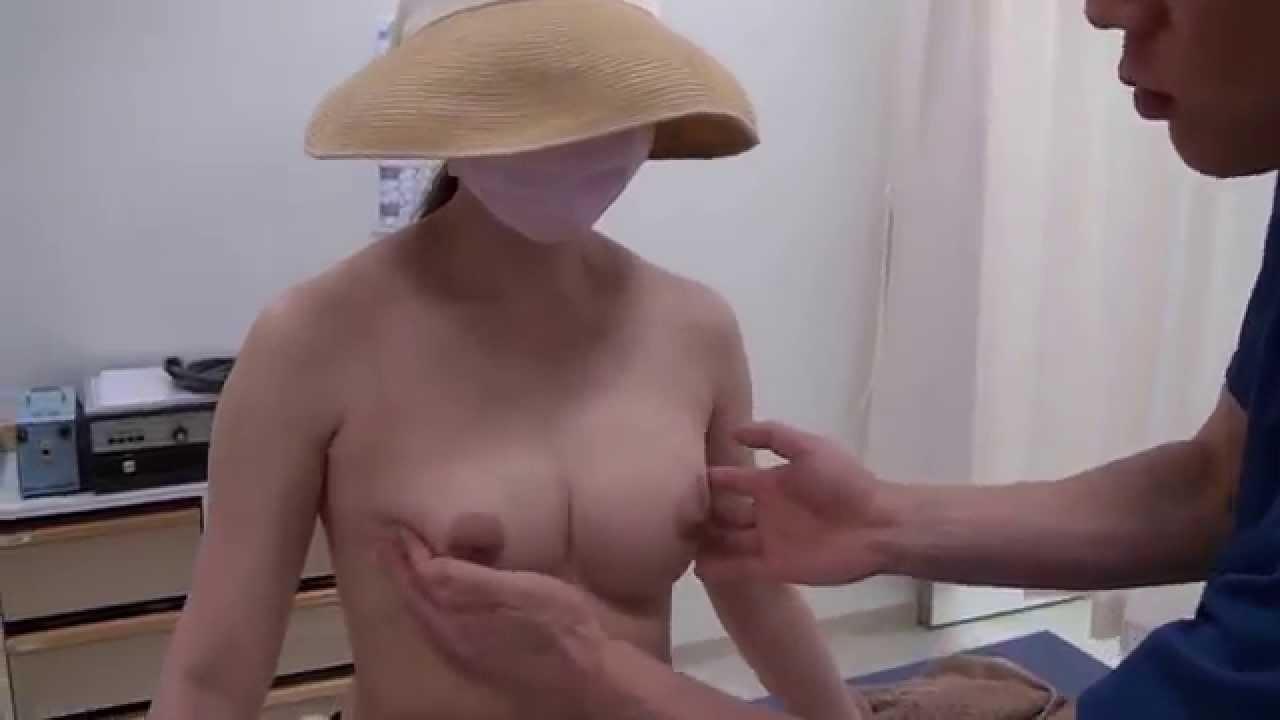 高須クリニック 豊胸手術後3カ月の経過 腫れ、痛み、効果、感触、柔らかさ、固さ、ダウンタイム 美容整形外科動画 - YouTube