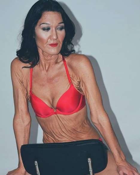 難病で肌がたるむ26歳女性がモデルに挑戦「けなす奴は放っておこう」