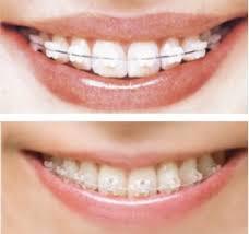 歯列矯正は整形ですか?