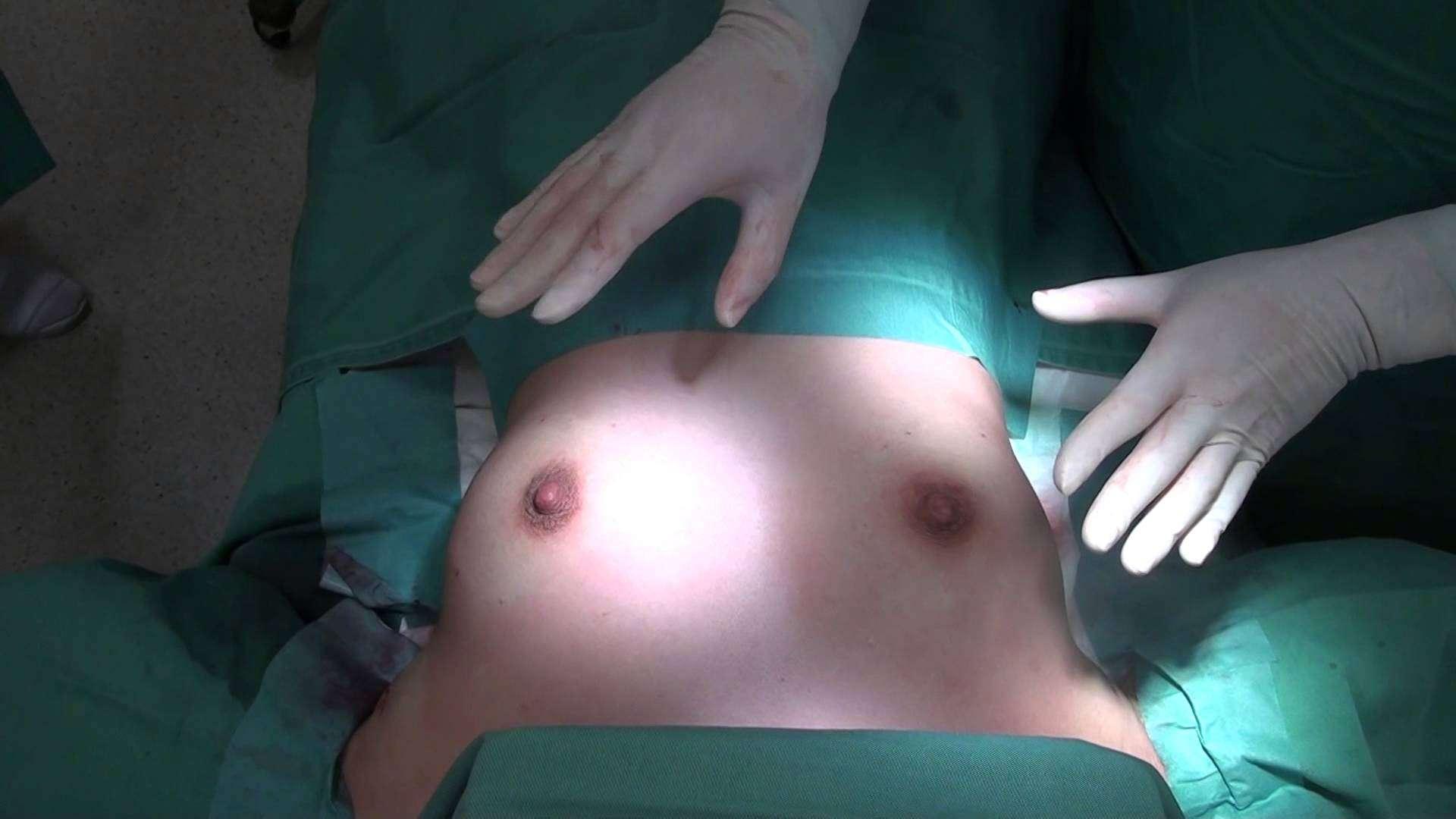 高須クリニック  豊胸シリコンプロテーゼ除去し、ヒアルロン酸注射  手術直後の映像① 寝た状態 術後の腫れ、経過、痛み、ダウンタイム、傷跡について - YouTube