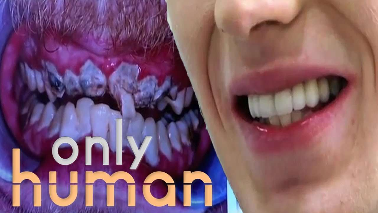Patient Hasn't Brushed Teeth In 20 Years | Embarrassing Bodies - YouTube