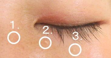 目の下などの白いぶつぶつ 「稗粒腫(はいりゅうしゅ・ひりゅうしゅ)」 治療法 予防法 - NAVER まとめ