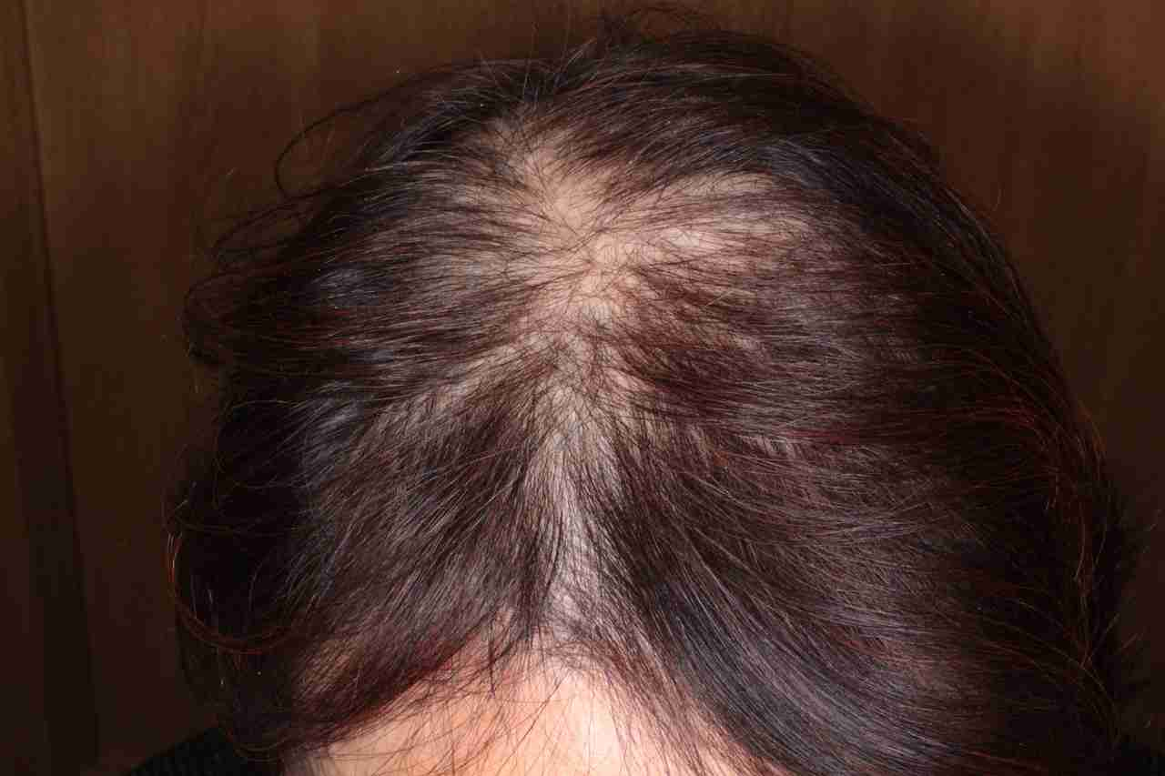 30代髪の毛事情