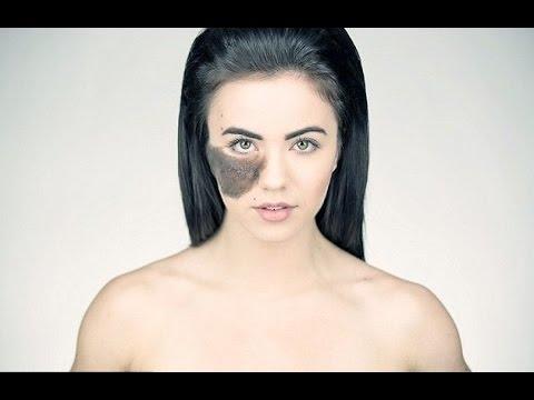 【感動】顔に大きなアザがある女性に勇気付けられる - YouTube