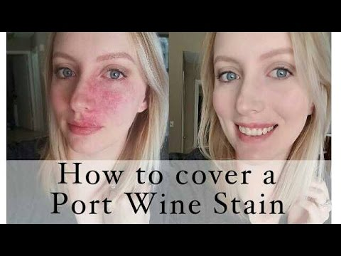 How to cover a Port Wine Stain birthmark - YouTube